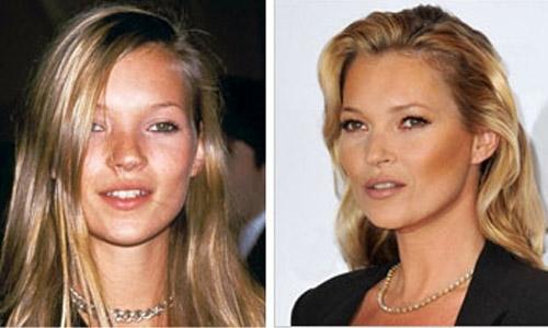 Kate Moss avant après