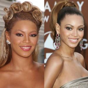 Stars et la chirurgie esthétique